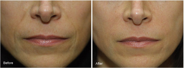 Before Radiesse Dermal Filler