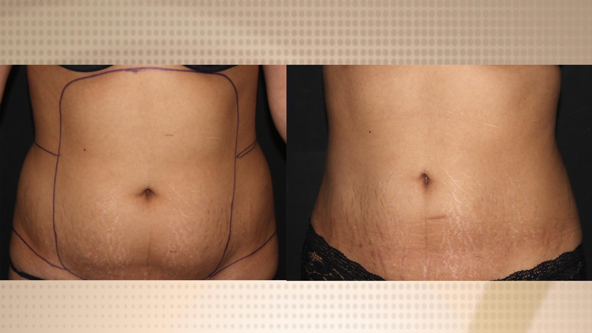 Tickle Vibro Liposuction Innovations Medical