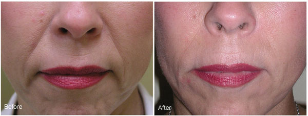 After Radiesse Dermal Filler