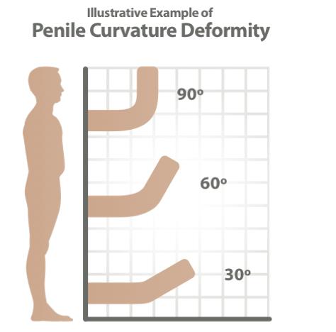 penile curvature deformity