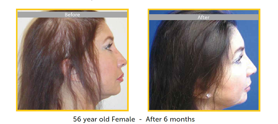before after female hair restoration
