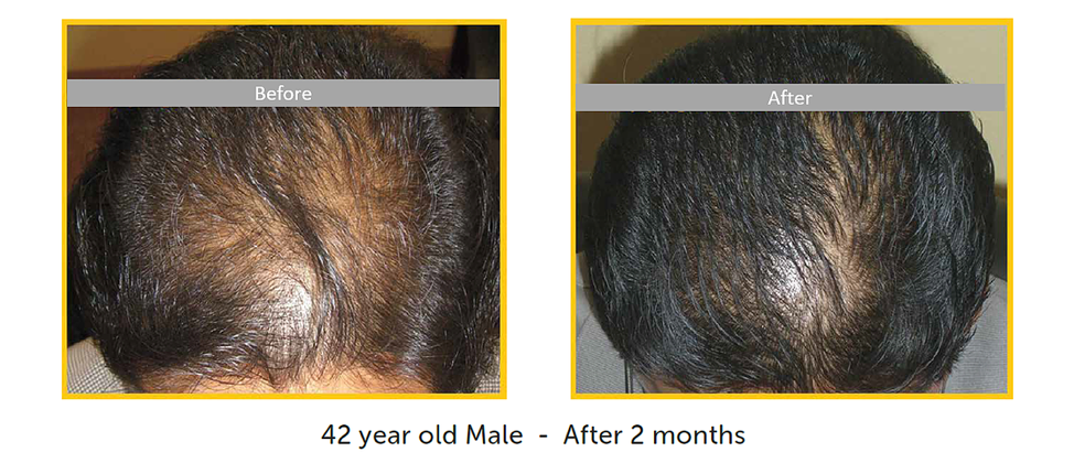 before after male hair restoration