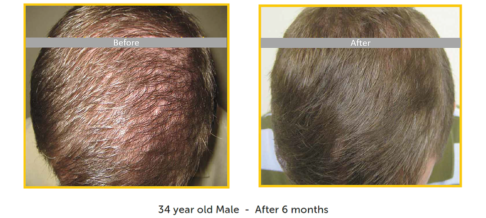 before after male restoration for hair