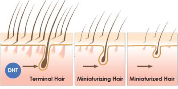 "What causes male pattern hair loss? Male pattern hair loss is also referred to as androgenetic hair loss. This is due to the importance of androgens or male hormones on the appearance of hair loss. Specifically, a hormone known as dihydro-testosterone or DHT is primarily for male pattern hair loss. DHT is produced from testosterone and in sensitive men causes a process called ""follicular miniaturization"" in hair follicles. Follicular miniaturization causes full size hair follicles called terminal hair follicles to shrink. The full size hair follicles produce large adult hairs."
