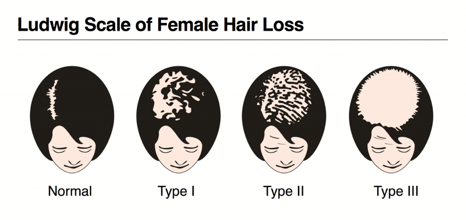 ludwig scale of hair loss