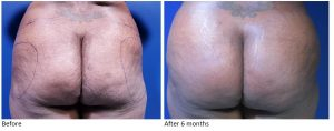 BBL before and after at Innovations Medical