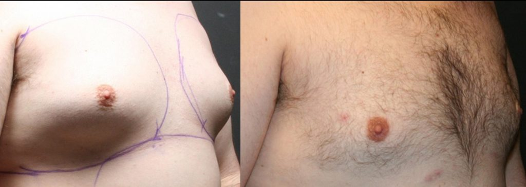 Male Breast (Moobs) reduction before and after
