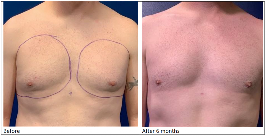 Male breast (Moobs) reduction before and after from front