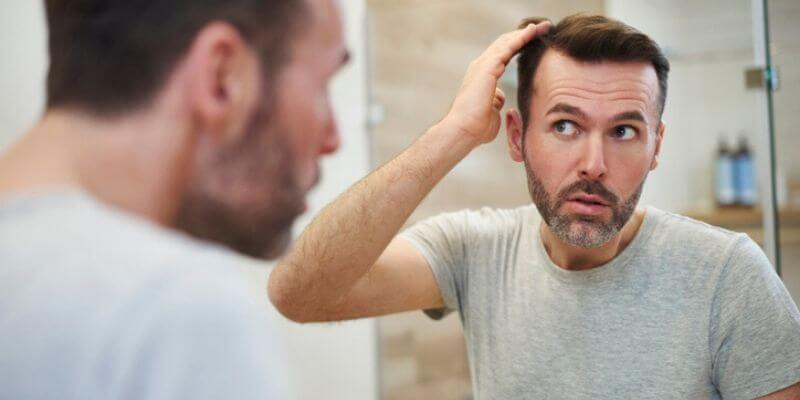 Early Signs of Balding Hair Loss