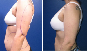 Fat Transfer Natural Breast Augmentation Before and After