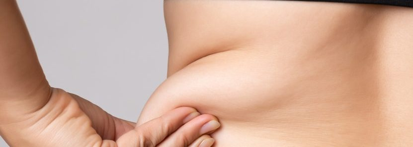 Liposuction Requirements