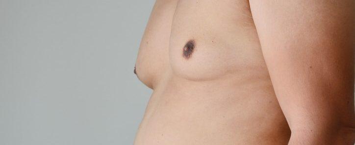 health benefits of liposuction