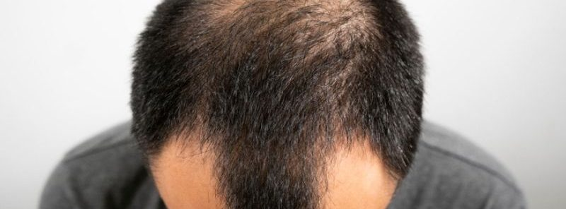 Can You Get a Hair Transplant Without Shaving Your Head