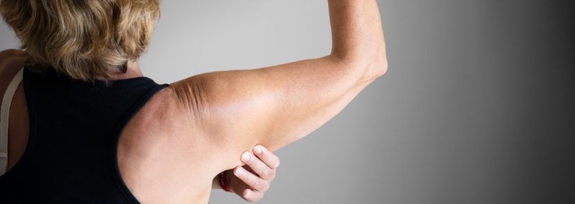How to Tighten Loose Skin on Arms